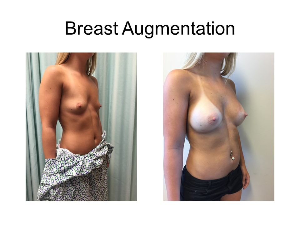 Breast Augmentation Khoury Plastic Surgery_AZ