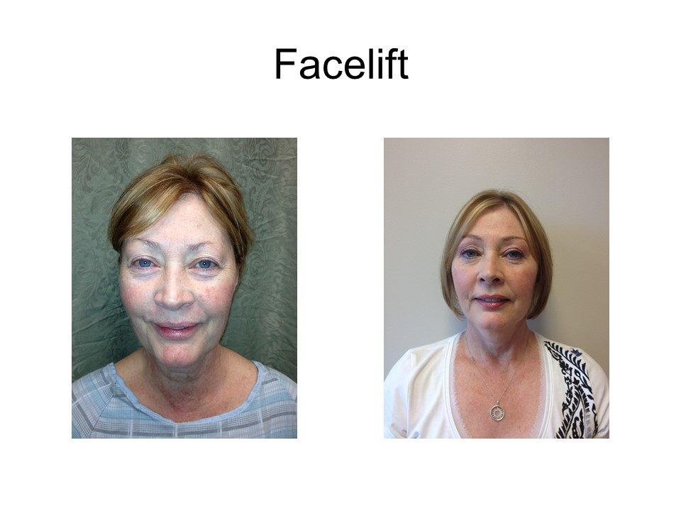 Facelift Khoury Plastic Surgery_DK