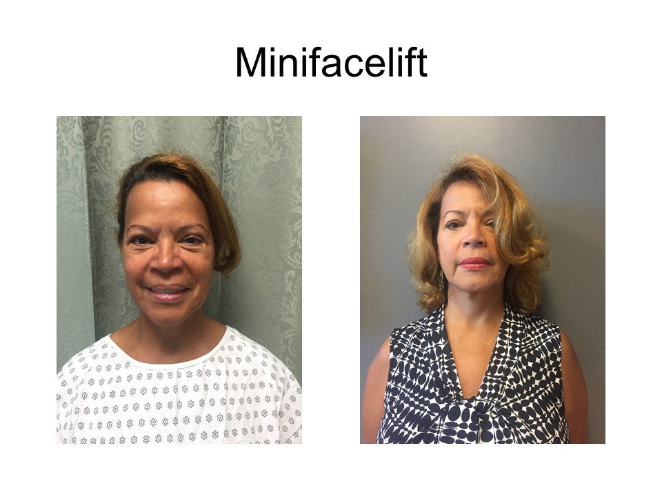 Mini Facelift Khoury Plastic Surgery_IG