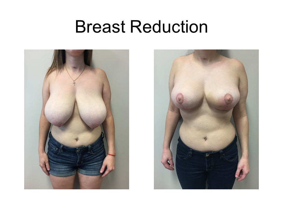 Breast Reduction Khoury Plastic Surgery_KP