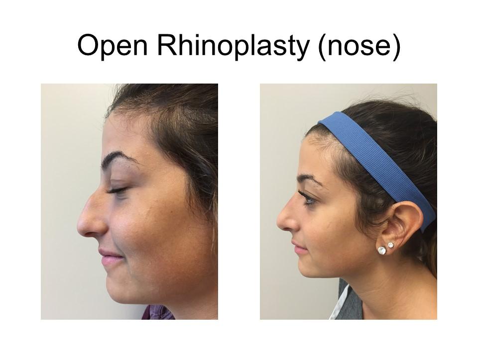 Rhinoplasty - Nose Job Khoury Plastic Surgery_MK