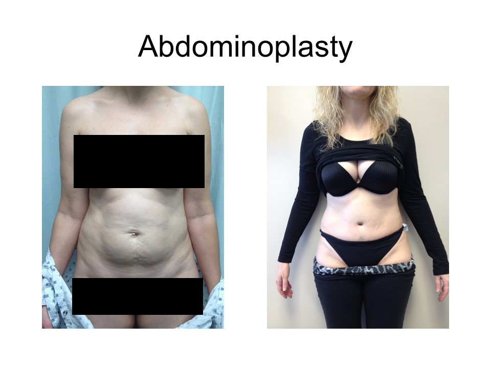 Abdominoplasty Khoury Plastic Surgery_RD