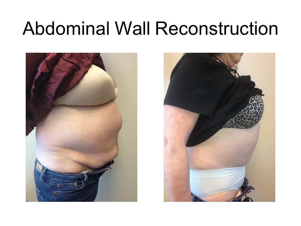 Abdominal Wall Reconstruction Khoury Plastic Surgery_RF